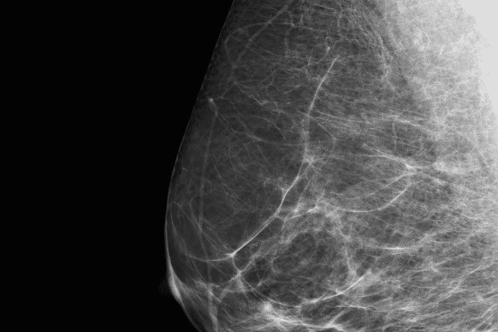 El tratamiento del tejido mamario anormal con cirugía y radioterapia reduce el riesgo de cáncer, pero los beneficios disminuyen con el tiempo - IOB Madrid